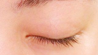 【目の周りの白いポツポツ】子供や女性に多い稗粒腫とは?